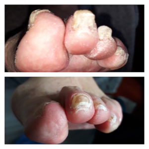 Treatment for Fungal Nails